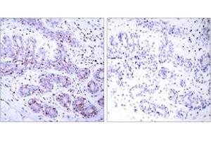 Immunohistochemistry (IHC) image for anti-Signal Transducer and Activator of Transcription 4 (STAT4) (AA 660-709) antibody (ABIN1533011)
