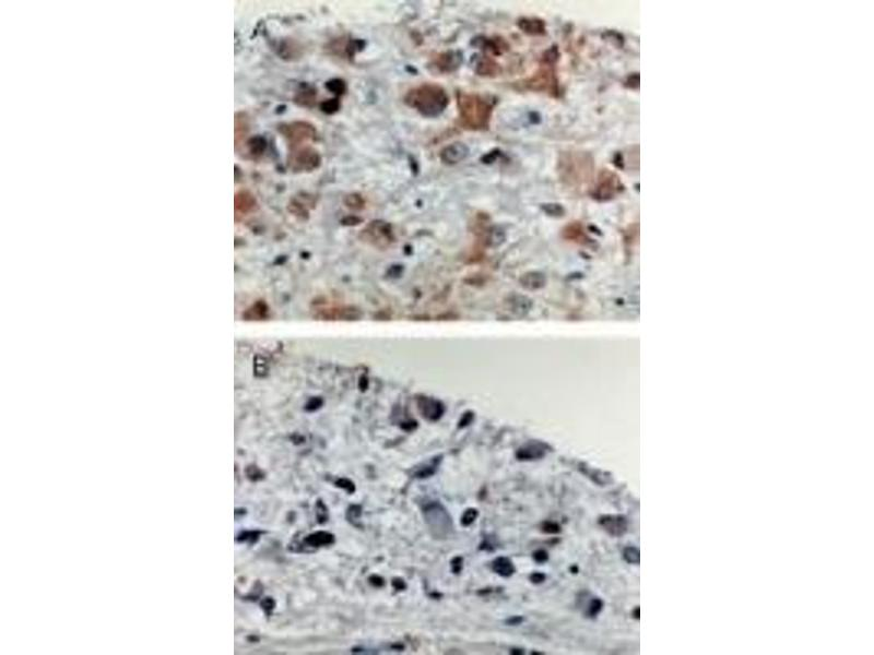 Immunohistochemistry (IHC) image for anti-Apoptotic Peptidase Activating Factor 1 (APAF1) antibody (ABIN252079)