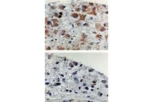 Immunohistochemistry (IHC) image for anti-APAF1 antibody (Apoptotic Peptidase Activating Factor 1) (ABIN252079)