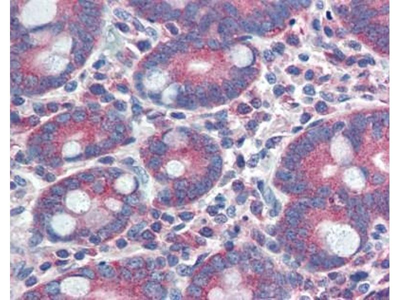 Immunohistochemistry (IHC) image for anti-YAP1 antibody (Yes-Associated Protein 1) (C-Term) (ABIN928378)