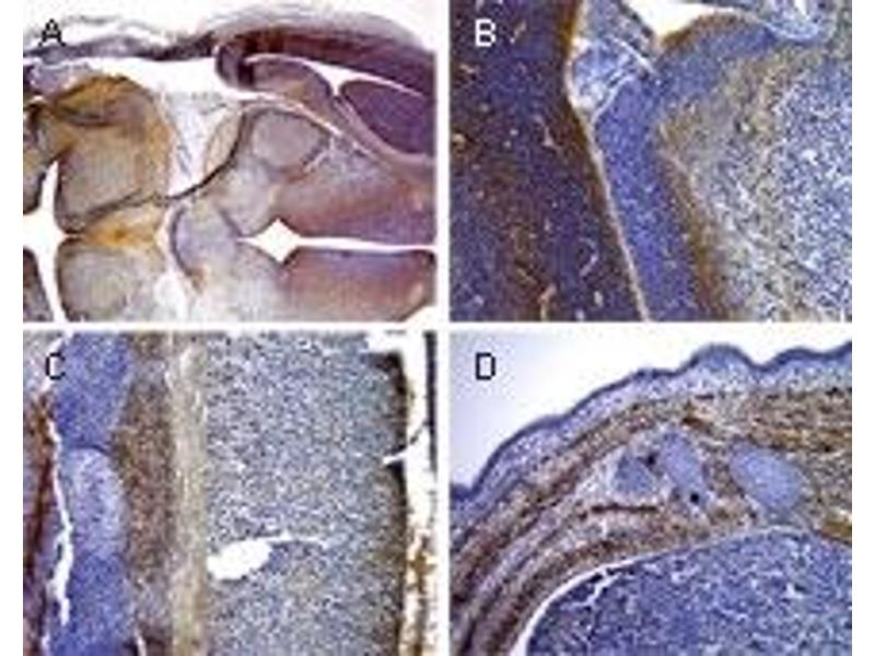 Immunohistochemistry (IHC) image for anti-Baculoviral IAP Repeat-Containing 7 (BIRC7) antibody (ABIN252145)