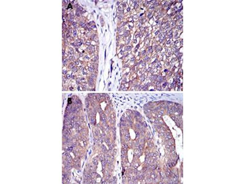 Immunohistochemistry (IHC) image for anti-Cas-Br-M (Murine) Ecotropic Retroviral Transforming Sequence (CBL) antibody (ABIN5573840)