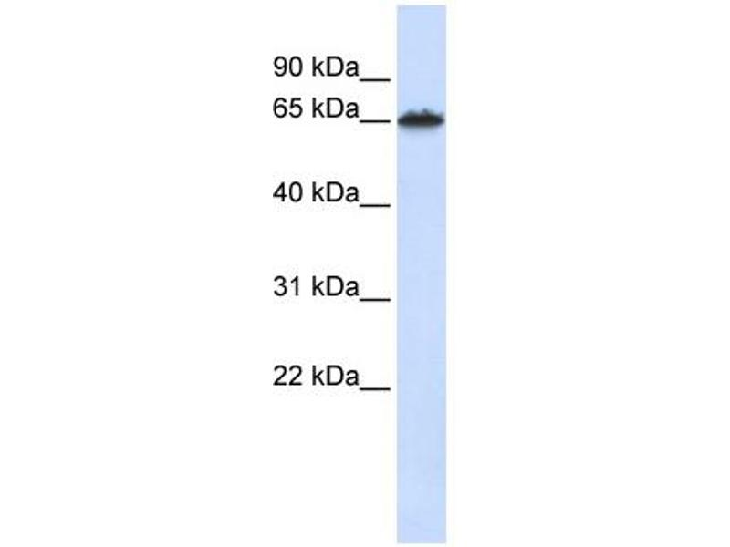 Western Blotting (WB) image for anti-Frizzled Family Receptor 4 (FZD4) (Middle Region) antibody (ABIN2776715)