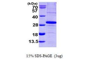 Image no. 1 for SCO2 Cytochrome C Oxidase Assembly Protein (SCO2) (AA 42-266) protein (His tag) (ABIN667861)