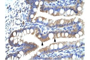 Image no. 1 for anti-Chloride Intracellular Channel 5 (CLIC5) (Middle Region) antibody (ABIN630088)