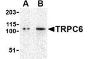Image no. 1 for anti-Transient Receptor Potential Cation Channel, Subfamily C, Member 6 (TRPC6) (N-Term) antibody (ABIN501066)