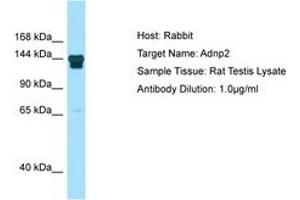 Image no. 1 for anti-ADNP Homeobox 2 (ADNP2) (N-Term) antibody (ABIN6749854)