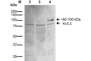 Image no. 2 for anti-Potassium Voltage-Gated Channel, Shaw-Related Subfamily, Member 2 (KCNC2) (AA 474-613) antibody (Alkaline Phosphatase (AP)) (ABIN2485797)