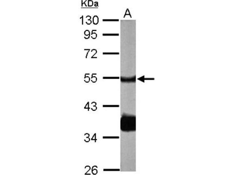 Western Blotting (WB) image for anti-PPP2R2B antibody (Protein Phosphatase 2, Regulatory Subunit B, beta) (Center) (ABIN442987)