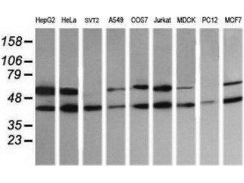 Western Blotting (WB) image for anti-Mitogen-Activated Protein Kinase Kinase 2 (MAP2K2) antibody (ABIN4333504)