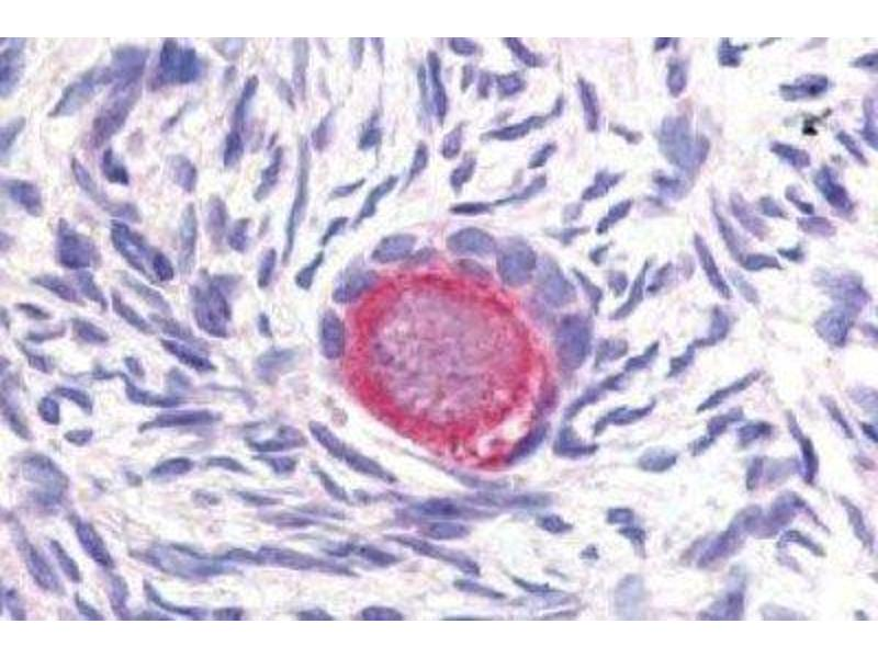 Immunohistochemistry (Paraffin-embedded Sections) (IHC (p)) image for anti-delta-Like 4 (DLL4) (Internal Region) antibody (ABIN269907)