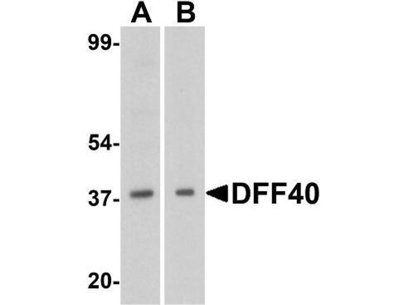 Western Blotting (WB) image for anti-DNA Fragmentation Factor, 40kDa, beta Polypeptide (Caspase-Activated DNase) (DFFB) (Center) antibody (ABIN4305065)