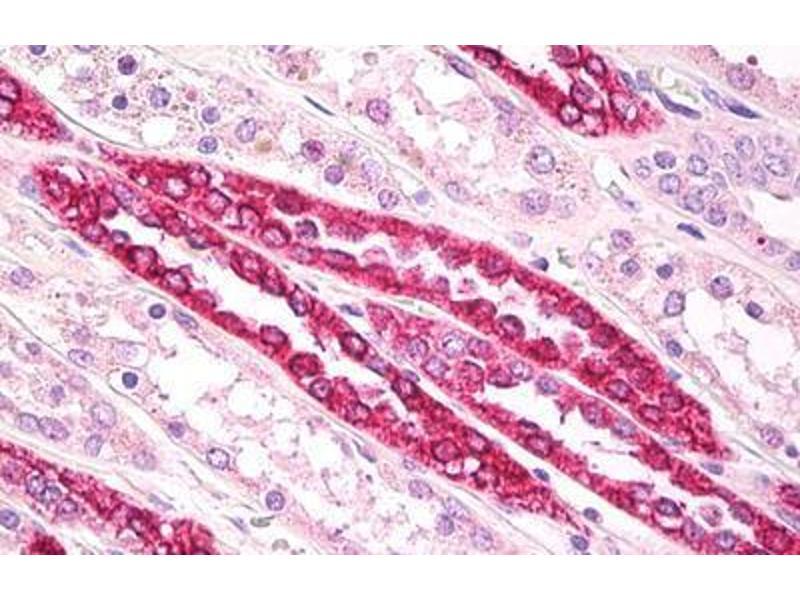 Immunohistochemistry (IHC) image for anti-Tubulin, beta (TUBB) (AA 417-435) antibody (ABIN1100230)