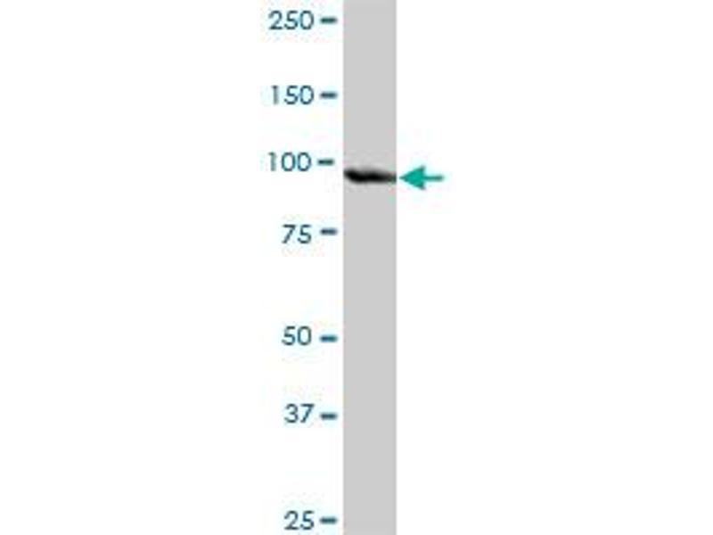 Western Blotting (WB) image for anti-Plasminogen (PLG) (AA 1-810), (full length) antibody (ABIN948269)