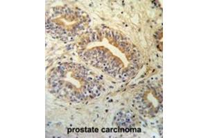Image no. 1 for anti-CWC15 Spliceosome-Associated Protein Homolog (S. Cerevisiae) (CWC15) antibody (ABIN3002140)