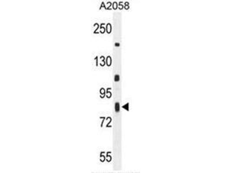 Western Blotting (WB) image for anti-Chromosome 6 Open Reading Frame 70 (C6ORF70) (AA 346-375), (Middle Region) antibody (ABIN950958)