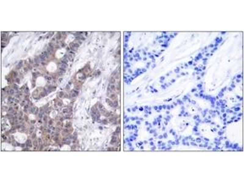 Immunohistochemistry (IHC) image for anti-Stathmin 1 antibody (STMN1) (pSer15) (ABIN1531981)