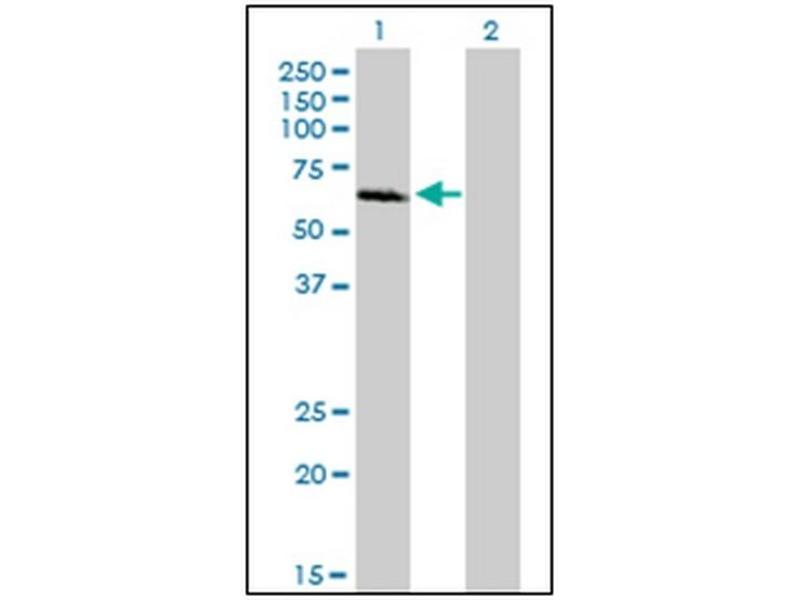 Western Blotting (WB) image for anti-IRAK1 antibody (Interleukin-1 Receptor-Associated Kinase 1) (AA 530-693) (ABIN614625)