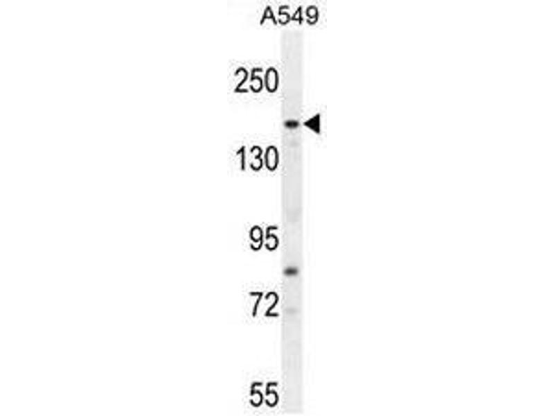 Western Blotting (WB) image for anti-FYVE, RhoGEF and PH Domain Containing 6 (FGD6) (AA 1331-1359), (C-Term) antibody (ABIN952305)