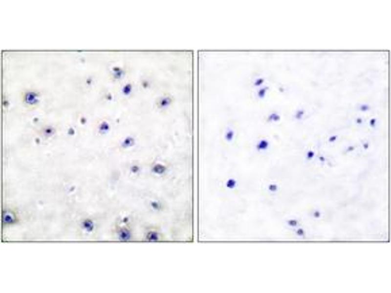Immunohistochemistry (IHC) image for anti-Neurotrophic Tyrosine Kinase, Receptor, Type 1 (NTRK1) (AA 747-796) antibody (ABIN1532219)