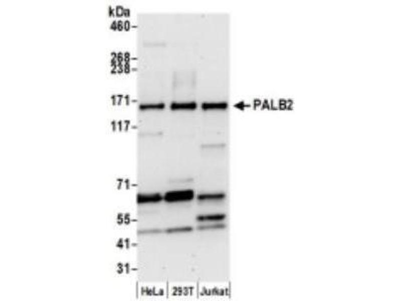 Western Blotting (WB) image for anti-Partner and Localizer of BRCA2 (PALB2) (AA 200-250) antibody (ABIN253057)