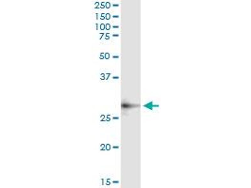 Immunoprecipitation (IP) image for anti-Cat Eye Syndrome Chromosome Region, Candidate 1 (CECR1) (AA 402-511), (partial) antibody (ABIN526943)