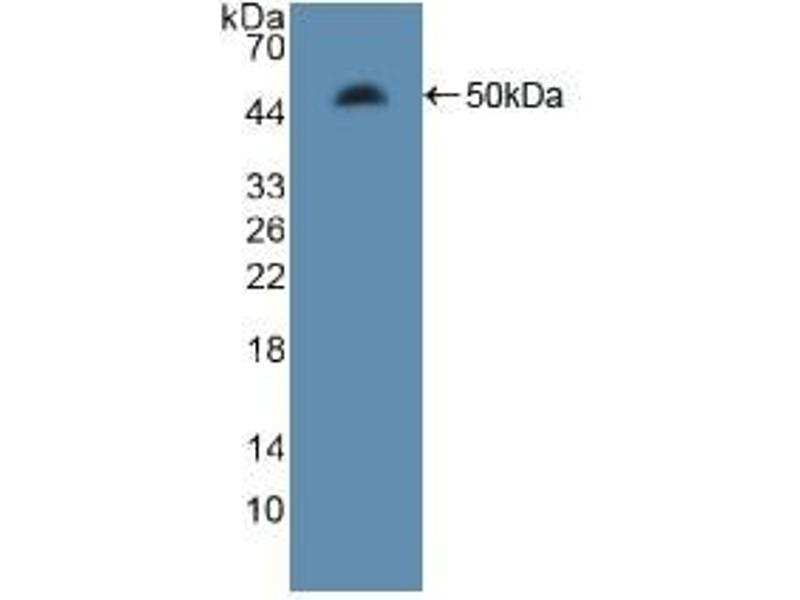 Western Blotting (WB) image for anti-Microtubule-Associated Protein 4 (MAP4) (AA 2-250) antibody (ABIN2914837)
