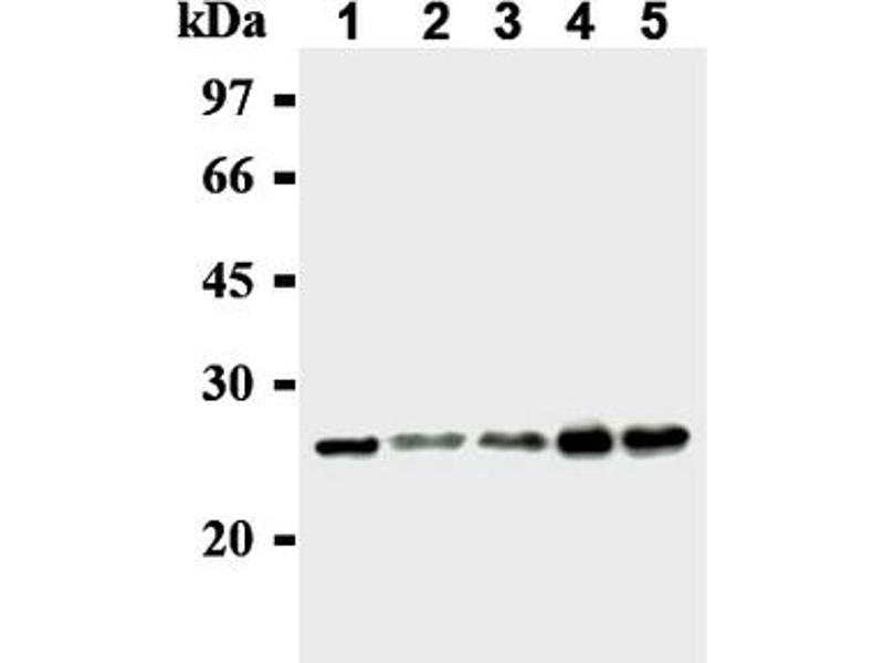 Western Blotting (WB) image for anti-MAD2L1 antibody (MAD2 Mitotic Arrest Deficient-Like 1 (Yeast)) (ABIN567786)