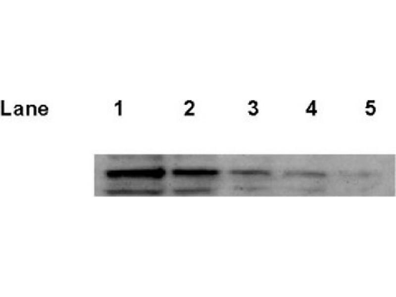 Western Blotting (WB) image for anti-Tumor Protein P53 (TP53) antibody (ABIN152250)
