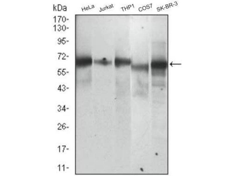 Western Blotting (WB) image for anti-Sequestosome 1 (SQSTM1) (AA 100-400) antibody (ABIN4343162)