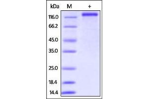 Image no. 1 for CD163 (CD163) (AA 42-1045) protein (His tag) (ABIN2870623)