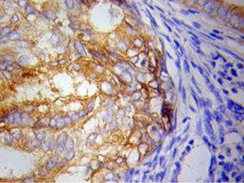 Immunohistochemistry (IHC) image for anti-Inhibitor of kappa Light Polypeptide Gene Enhancer in B-Cells, Kinase epsilon (IKBKE) antibody (ABIN1873180)