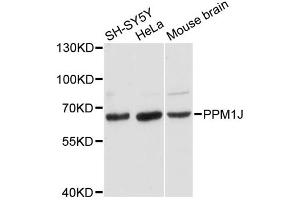 Image no. 1 for anti-Protein Phosphatase 1J (PPM1J) antibody (ABIN6567662)