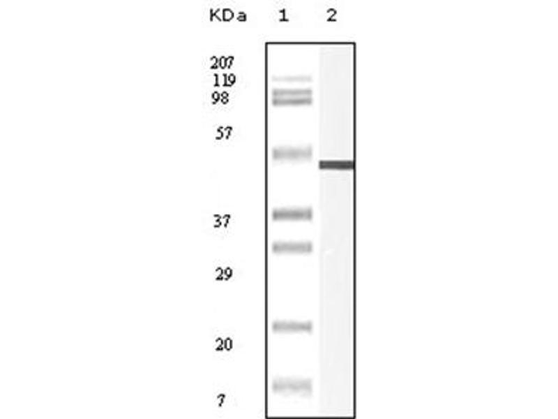Western Blotting (WB) image for anti-Vimentin antibody (VIM) (ABIN1109482)