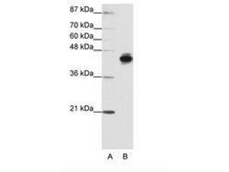 image for anti-Keratin 18 (KRT18) (N-Term) antibody (ABIN203131)