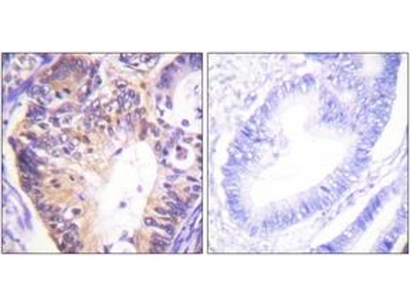 Immunohistochemistry (IHC) image for anti-P21-Activated Kinase 1 (PAK1) (AA 178-227) antibody (ABIN1532383)