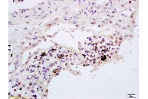 Immunohistochemistry (Paraffin-embedded Sections) (IHC (p)) image for anti-Tumor Necrosis Factor, alpha-Induced Protein 3 (TNFAIP3) (AA 80-103) antibody (ABIN680938)