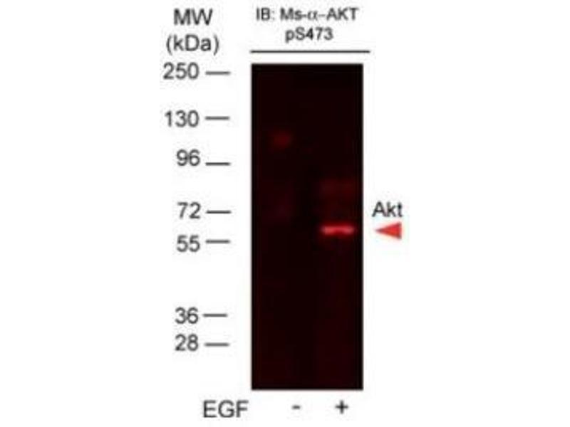 Western Blotting (WB) image for anti-V-Akt Murine Thymoma Viral Oncogene Homolog 1 (AKT1) (pSer473) antibody (ABIN4278999)