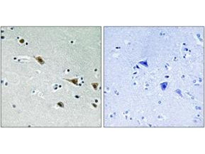 Immunohistochemistry (IHC) image for anti-Mitogen-Activated Protein Kinase Kinase 7 (MAP2K7) (pSer271), (AA 236-285) antibody (ABIN1532060)