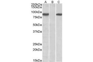 Western Blotting (WB) image for anti-STAT4 antibody (Signal Transducer and Activator of Transcription 4) (ABIN2503770)