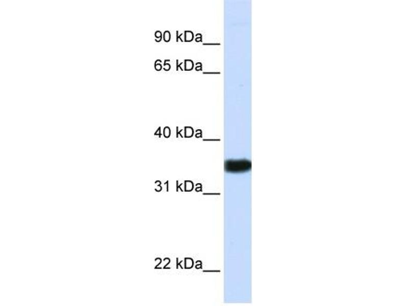 Western Blotting (WB) image for anti-GAPDH antibody (Glyceraldehyde-3-Phosphate Dehydrogenase) (N-Term) (ABIN501931)