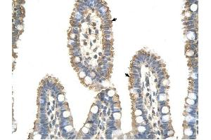 Image no. 1 for anti-Anaphase Promoting Complex Subunit 7 (ANAPC7) (C-Term) antibody (ABIN634214)