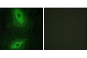 Image no. 2 for anti-Tumor Necrosis Factor (Ligand) Superfamily, Member 15 (TNFSF15) (AA 181-230) antibody (ABIN1533555)