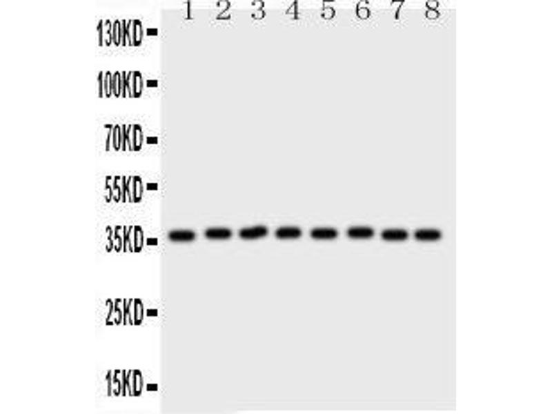 Western Blotting (WB) image for anti-Annexin V antibody (Annexin A5) (AA 2-320) (ABIN3043502)