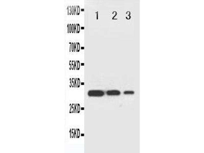 Western Blotting (WB) image for anti-TNF Receptor-Associated Factor 2 (TRAF2) (AA 305-325), (Middle Region) antibody (ABIN3044047)