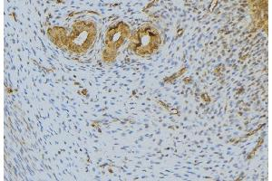 Immunohistochemistry (IHC) image for anti-Fibroblast Growth Factor 10 (FGF10) antibody (ABIN6261721)
