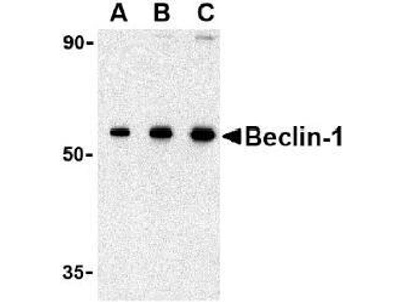 Western Blotting (WB) image for anti-Beclin 1 antibody (Beclin 1, Autophagy Related) (N-Term) (ABIN497971)