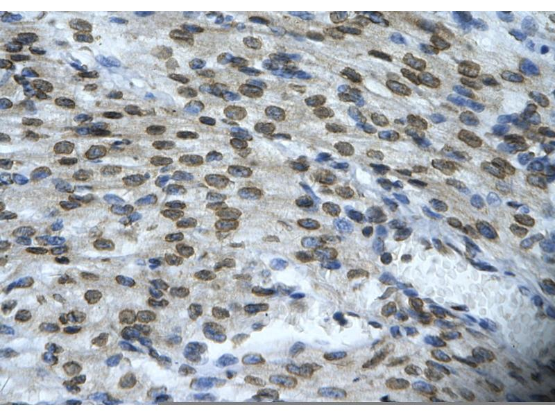 Immunohistochemistry (Paraffin-embedded Sections) (IHC (p)) image for anti-BAX antibody (BCL2-Associated X Protein) (N-Term) (ABIN2792125)