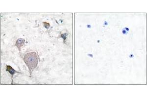 Image no. 1 for anti-Peripherin (PRPH) (AA 421-470) antibody (ABIN1533379)
