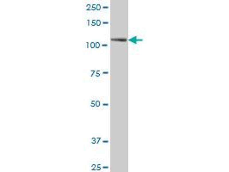 Western Blotting (WB) image for anti-PTK7 antibody (PTK7 Protein tyrosine Kinase 7) (AA 36-145) (ABIN519485)